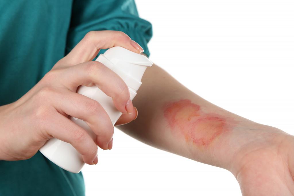 a person spraying medicine on a skin burn
