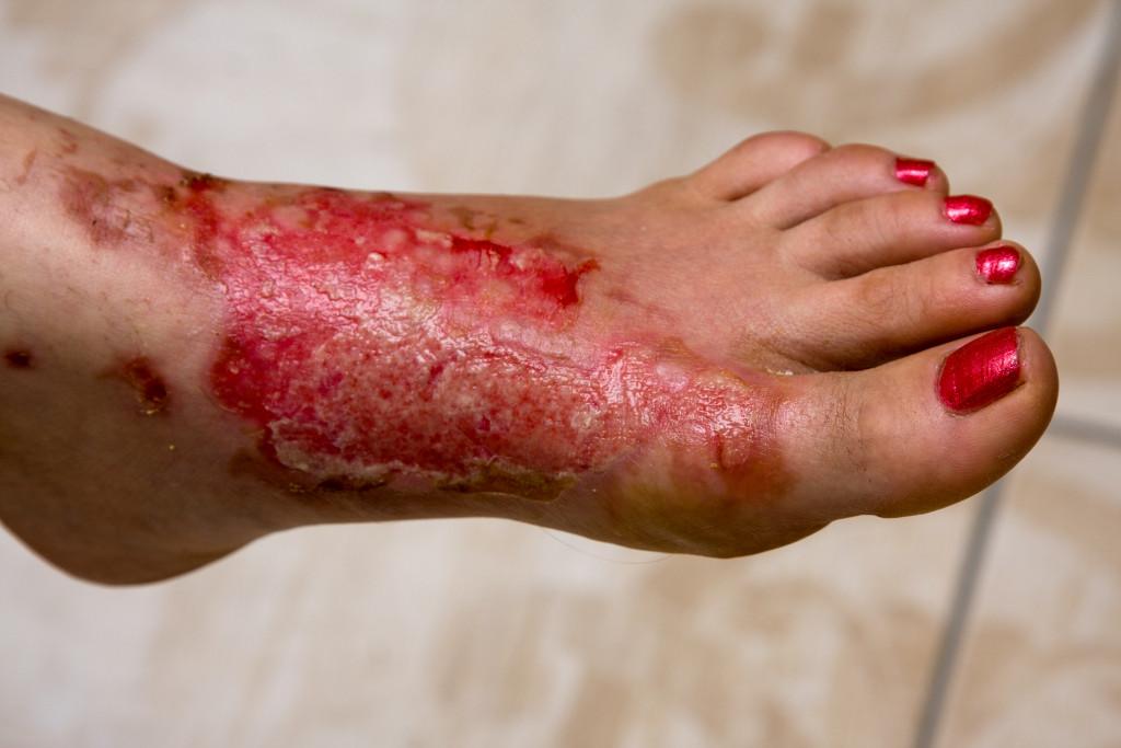 a burned foot